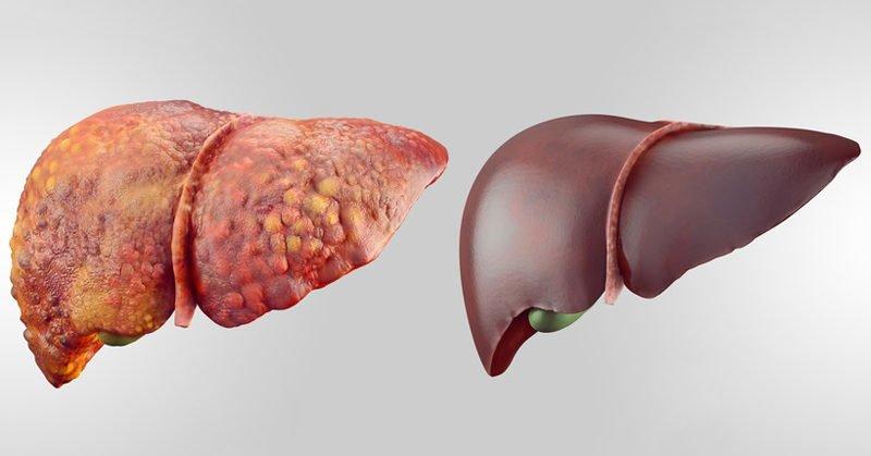 karaciğer detoks huglero.com