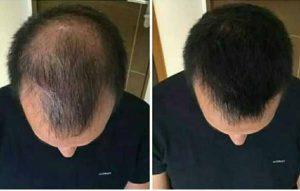 huglero.com/wp , saç dökülmesi , kellik , kelliğin ilacı , saç dökülme nedenleri , dökülen saçlara çözüm nedir?