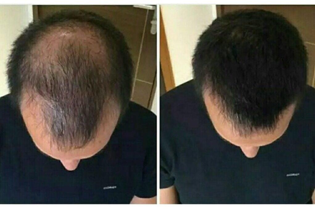 sac dokulmesi 1 e1537734588852 https://huglero.com/kalashnikov-retro-stil-elektrikli-otomobil/ Saçlarınızın varlığı çoğu insan için şüphe götürmez bir öneme sahiptir. Dökülmeye başlaması ve bunu durduramamanız çok canınızı sıkıyor. Bundan eminim. Ya da zaten uzun zaman önce döküldü ve siz de eskisi gibi genç görünmek ve eski öz güveninizi ve gür saçlarınızın olduğu günleri geri istiyorsunuz. Bu yüzden bugün saçıyla başı dertte olanlarınızın merak ettiği sorular olan, ' Saç dökülmesi nedenleri nelerdir? Saç dökülmesini önlemek için neler yapılabilir? Saçların daha sağlıklı olması için neler yapılabilir? Saç çıkarmanın yolları nelerdir? ' gibi sorulara cevap olacak ve saç dökülmesi problemini ele aldığım kısa bir yazı yayımlamak ve sonunda saç dökülmesini önlemek ve zaten dökülmüş olan saçları tekrar çıkarmak için kullanılabilecek organik ve kimyasal içermeyen bir serum hakkında bilgilendirme yapmak istiyorum. Bunu yapma sebebim serumu kullanmaya başladığı aydan sonra saçların yavaş yavaş çıkmaya başladığına şahit olmamdır.