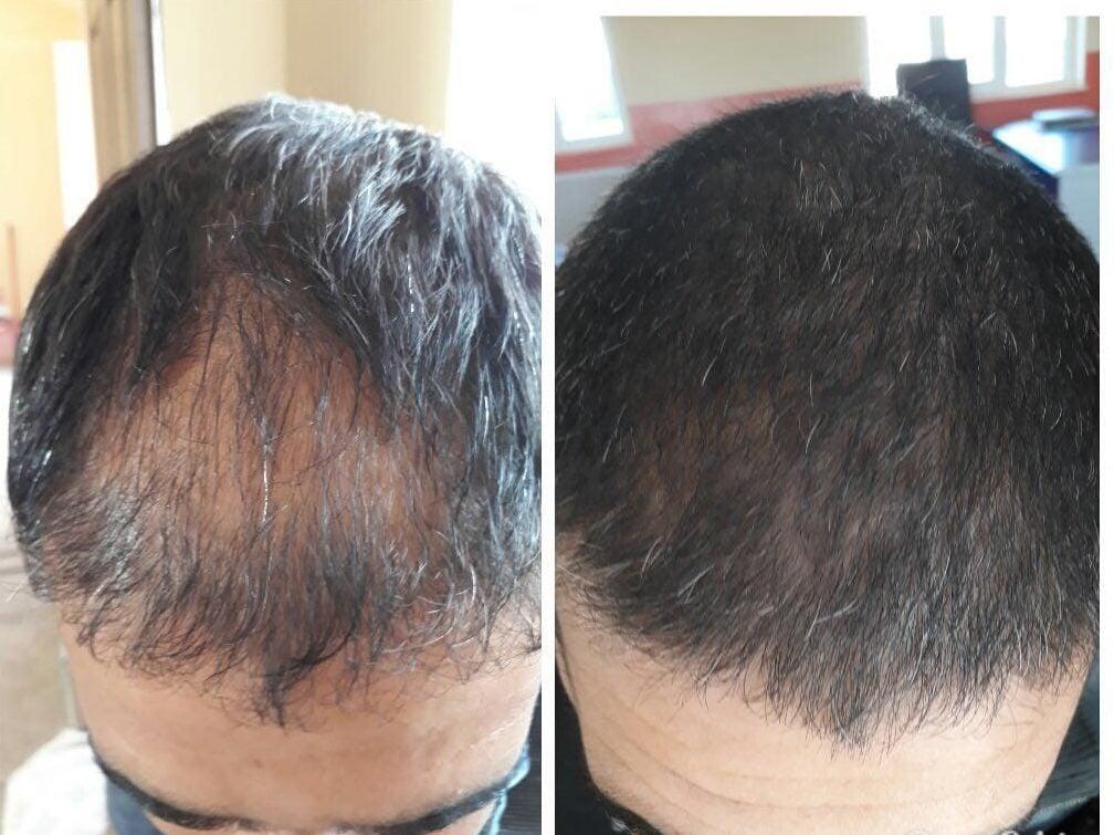https://huglero.com , saç dökülmesi , kellik , kelliğin ilacı , saç dökülme nedenleri , dökülen saçlara çözüm nedir?