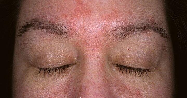 yüzde seberoik dermatit https://huglero.com