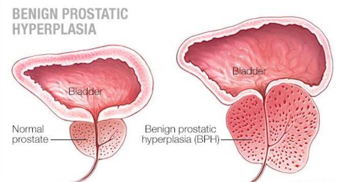 normal prostat vs büyümüş prostat https://huglero.com